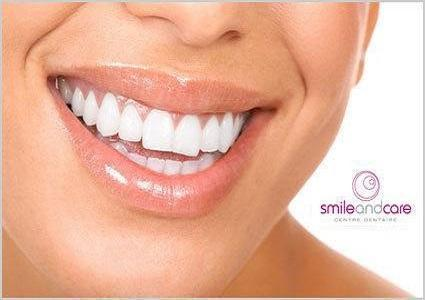 Dental Cleaning at Smile & Care Dental Clinic