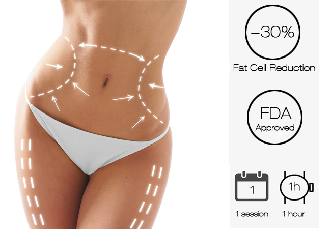 Cryolipolysis Fat Reduction with Highly Qualified Doctor at Aesthetics