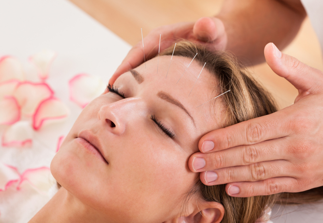 2 x Acupuncture Sessions at Institut Médicine de Champel