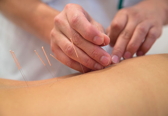 Chinese Treatments with Certified Practitioner Philippe Bruzzone (Old Town):    Tui-Na Massage Acupuncture Reboutologie® Massage   Open Mon-Fri  Photo