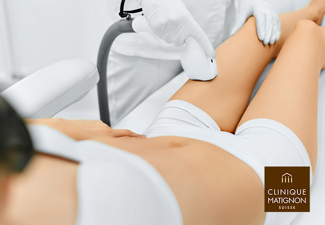 4.6 Stars on Facebook [Nyon & Lausanne] Laser Hair Removal at Clinique Matignon in Nyon, Lausanne, Vevey & More LocationsCredit to use towards any body parts:   Pay CHF 299 for CHF 600 Credit Pay CHF 589 for CHF 1200 Credit Pay CHF 1099 for CHF 2400 Credit   Photo