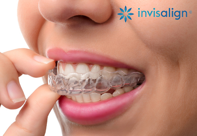 Orthodontic Consultation plus 10% off Full Ortho Treatment at SmileandCare Eaux-Vives